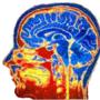 cerebro2.gif