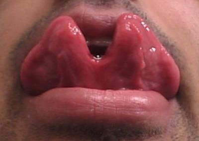 tongue-split-tm.jpg